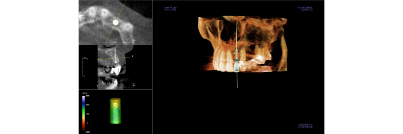 screen capture of an xray with a virtual implant