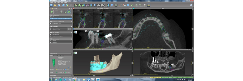 screen capture of xrays and 3D renderings on lower jaw