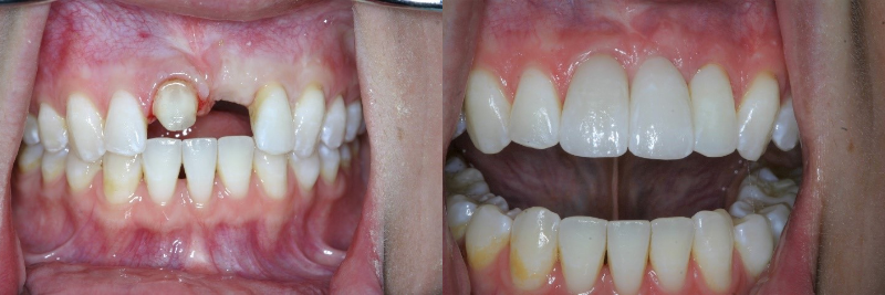 side by side comparision of missing front teeth and the repaired front teeth