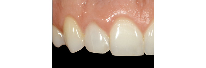close up of three top teeth, the middle tooth matching the others
