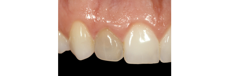 close up of three top teeth, the middle tooth being slightly darker