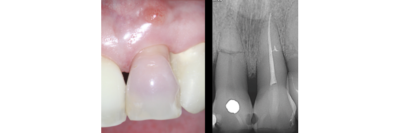 side by side of a tooth and the xray