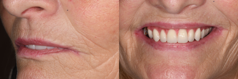 Side and front patient images after treatment