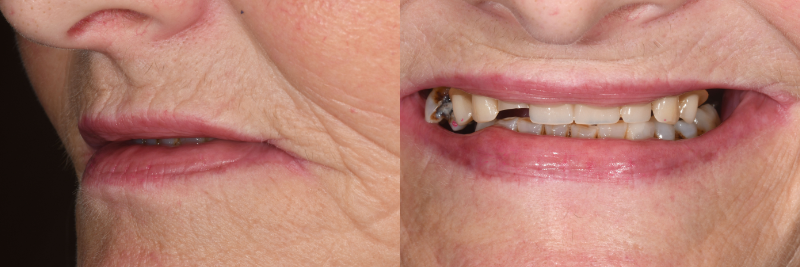 Side and front patient images prior to treatment.