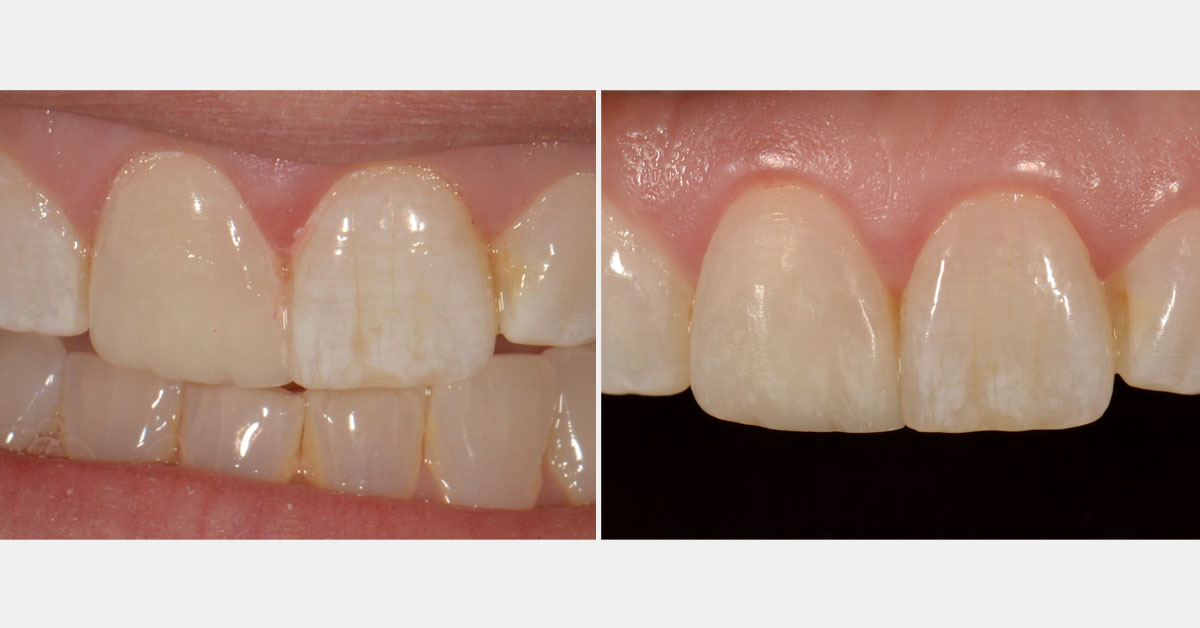 Before-and-after anterior composite restorations.