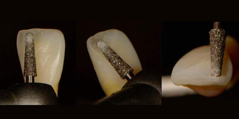 Prepping anterior composites with a large diamond.