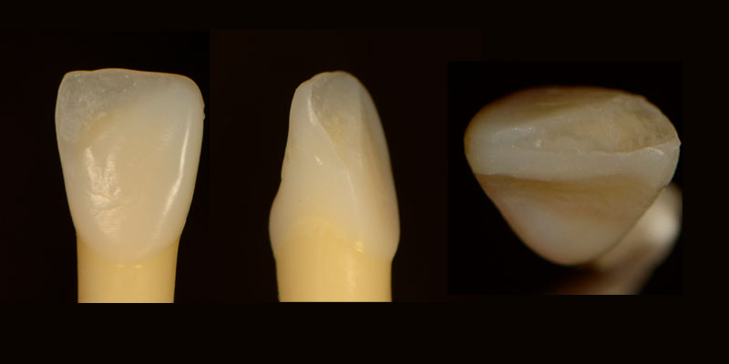 Completed anterior composites.
