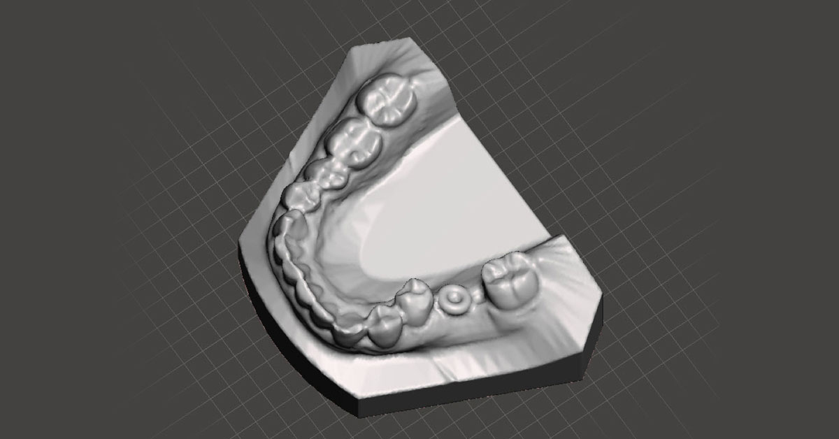 Digitally merged models with a marker ring to signify where to place the dental implant, after digitally dropping out the post-ortho model, leaving only the implant position marker and your pre-ortho model.