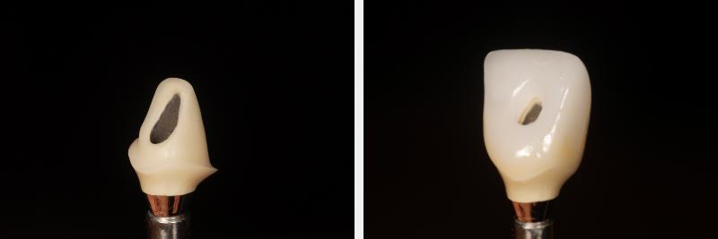 Image 2a & 2b