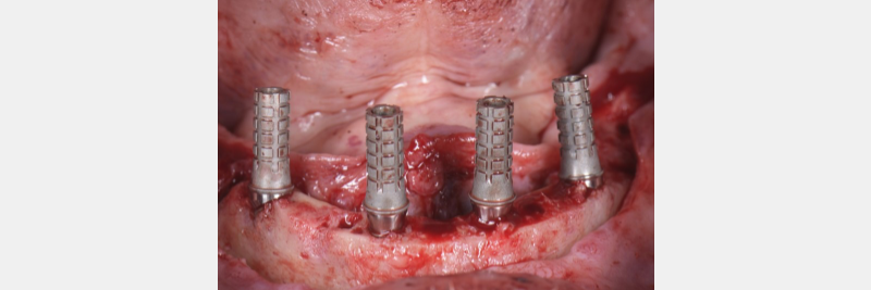 Once these SRA abutments for the fixed hybrid denture has been secured, non-engaging temporary cylinders are then secured on top of the SRAs.