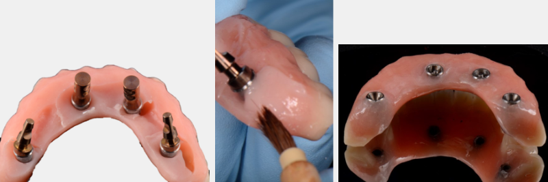 The contours of the fixed hybrid denture are modified to ensure a flat or slightly convex intaglio surface to promote hygiene during the osseointegration phase.