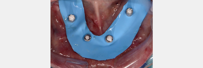 Utilizing a rubber dam or Teflon tape makes sure the pickup material for the fixed hybrid denture is contained above the undercut and retrieval of the prosthesis is simplified.