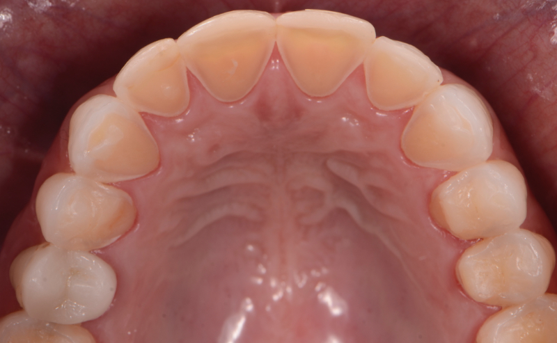 Intrinsic erosion lesions that are commonly found on the palatal surfaces of the maxillary teeth, followed by the occlusal and then the buccal surfaces.