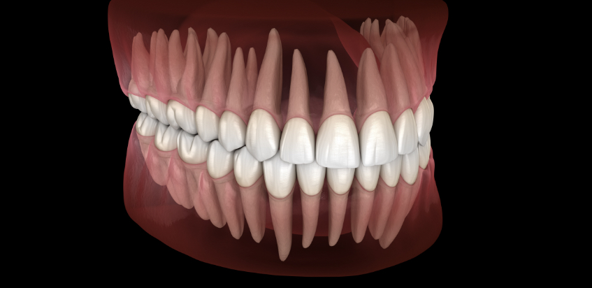 3D rendering of a full mouth on a black background