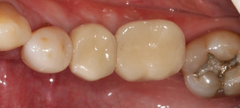 Example of cement-retained implant crowns showing no access hole through the implant crown.