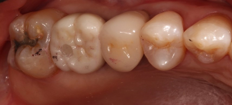 Example of a screw-retained implant crown showing screw access hole on the occlusal.