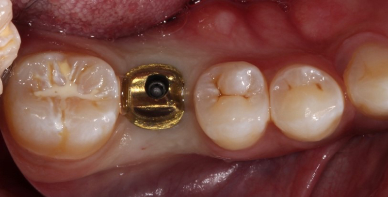 Example of an abutment seated intraorally. The crown is adjusted as if it were a cement-retained restoration.