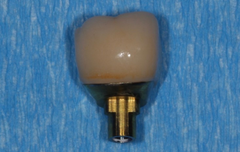 Example of a screwmentable implant restoration final product