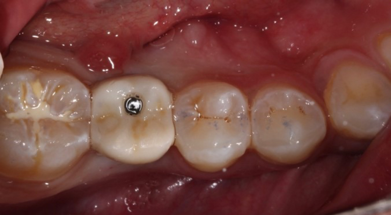 Example of a screwmentable implant crown seated intraorally.