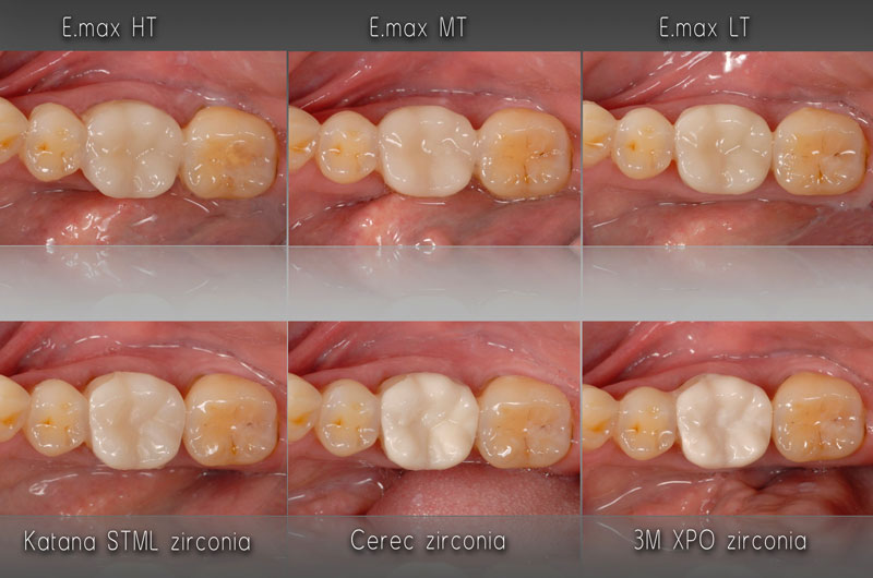 Monolithic restorations using a variety of restorative materials were fabricated and tried in to compare fit and esthetics.