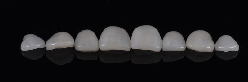 Finalized feldspathic ceramic veneers.