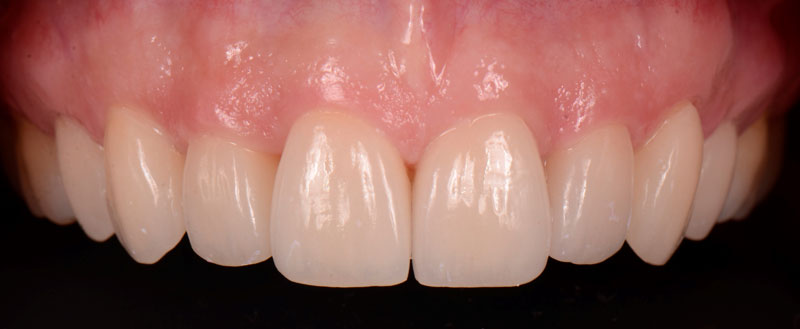 Ceramic veneers after cementation.