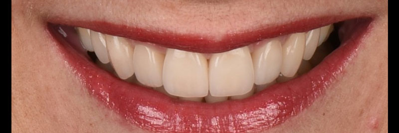 Full smile with ceramic restorations.