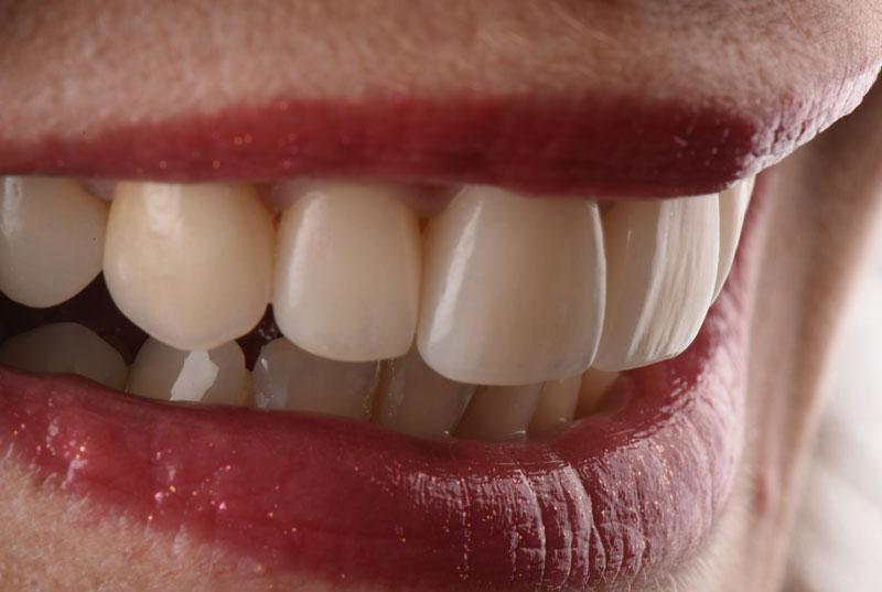 Smile assessment.