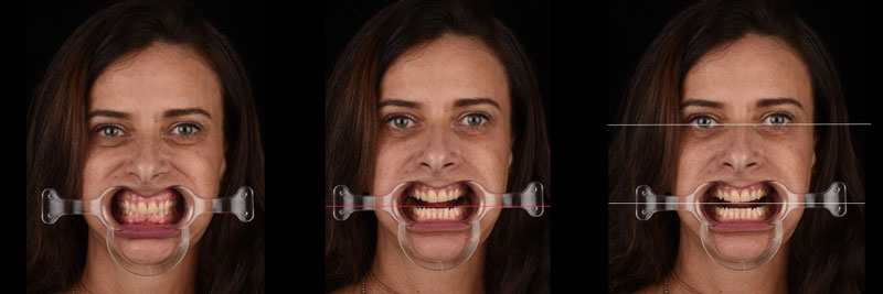Facial pictures demonstrating using retractors to assess incisal /occlusal plane orientation.