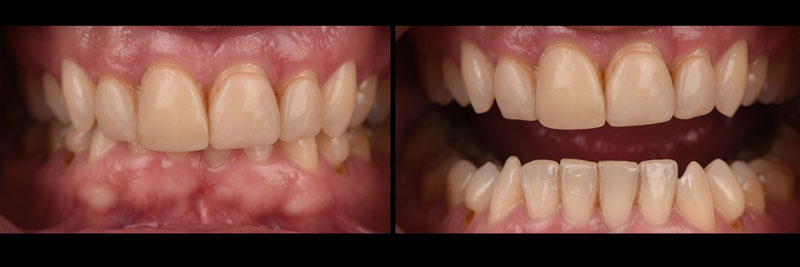 Frontal pictures in occlusion and separating the teeth to further show the incisal plane discrepancy.