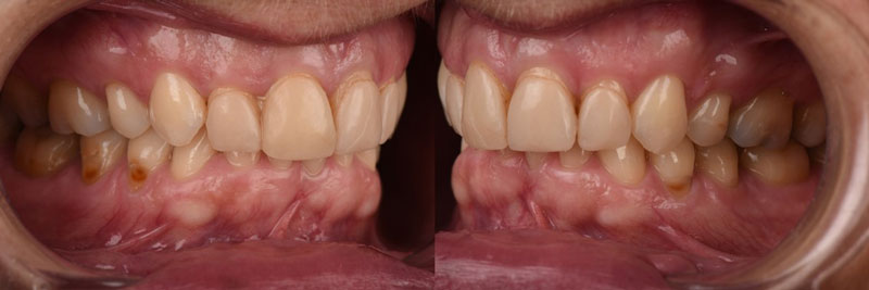 Lateral views of old ceramic veneers.