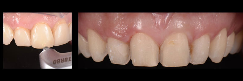 The old veneers are removed without damage to the tooth structure and the teeth are lightly re-prepared.