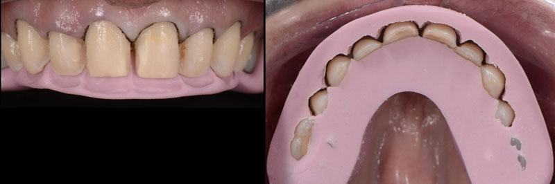 Utilizing reduction guides to verify adequate tooth reduction based on the wax-up.