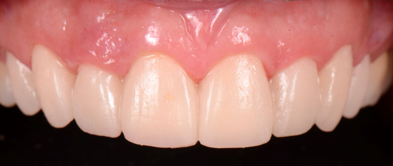 Frontal view of provisional restorations.