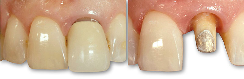 Side-by-side comparison of a single central incisor restoration.