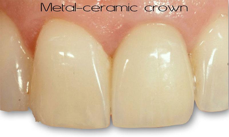 Metal-ceramic crown for single central incisor restoration.