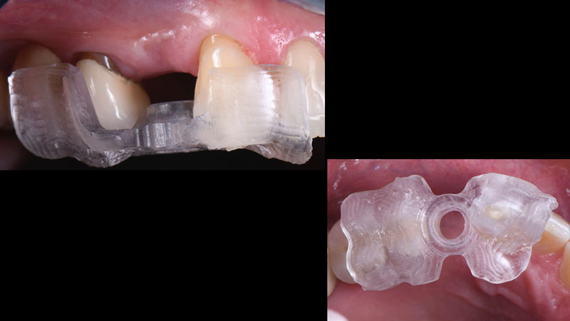 Occlusal and frontal view of the milled surgical guide seated intraorally.