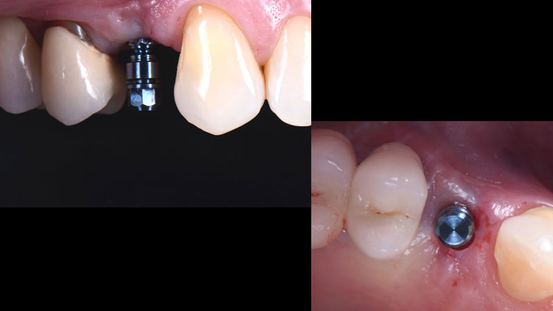 Front and occlusal view of the placed implant.