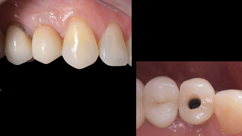 Front and occlusal view of the provisional restoration intraorally.