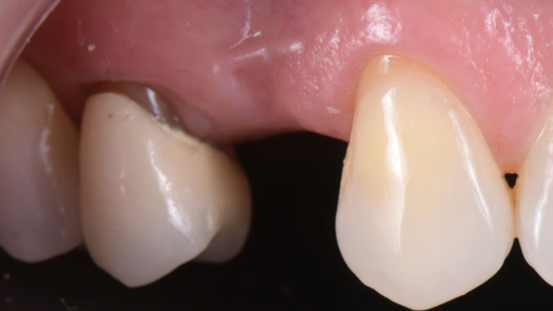 Edentulous first premolar area from the front.