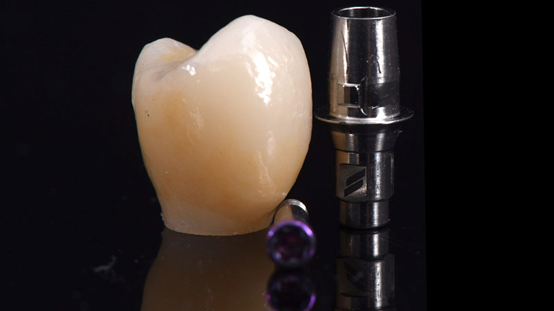 Final restoration milled from an e.max CAD block after crystallization.