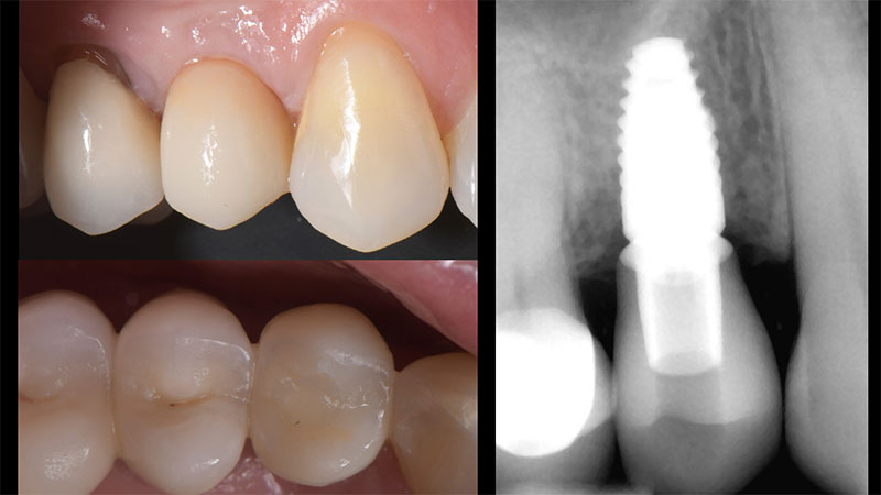 Front and occlusal view of the final restoration intraorally with last periapical radiograph.