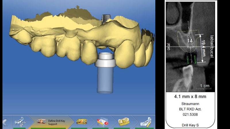 Virtual implant planning based on the digital wax-up and CBCT information.