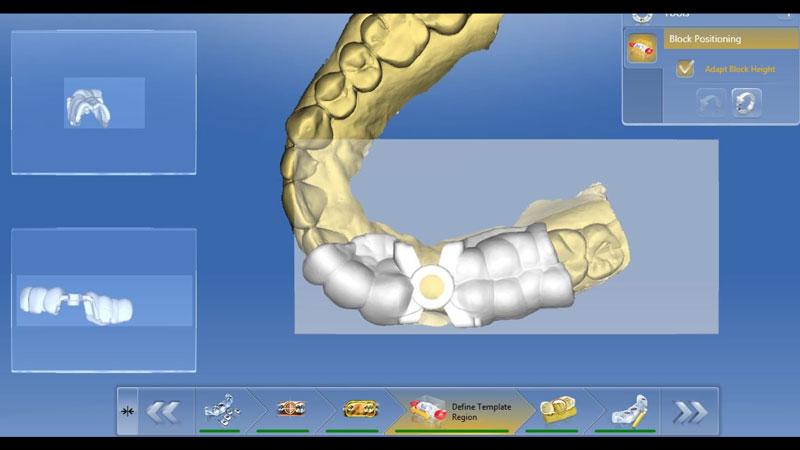 CEREC surgical guide design.