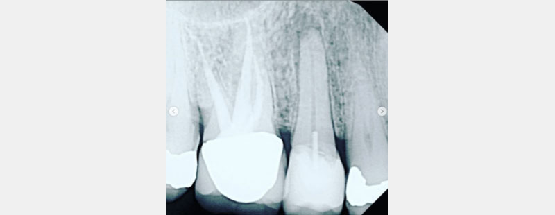 Radiograph showing UR5 with large restoration with pin retention and periapical lucency.