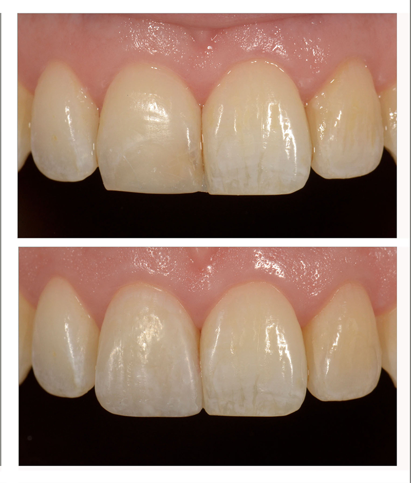 Layering esthetic composite allowed for a seamless transition from the patient's natural tooth to the restorative material.