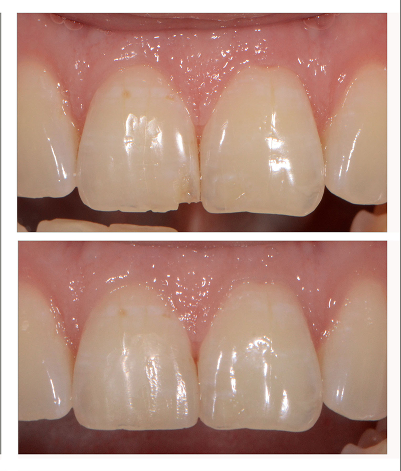 Example of bonding composites in the esthetic zone.