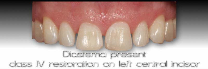 Diastema present, class IV restoration on left central incisor.