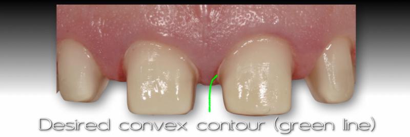 Desired convex contour (green line).