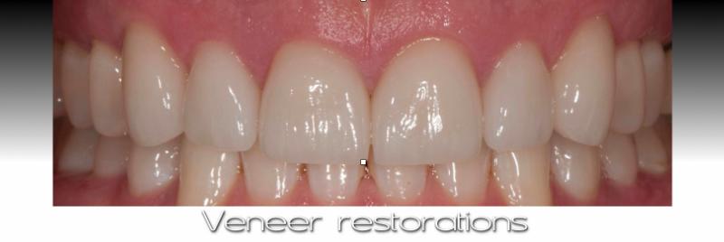 Veneer restorations.